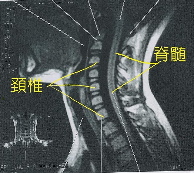 脊髄症状型