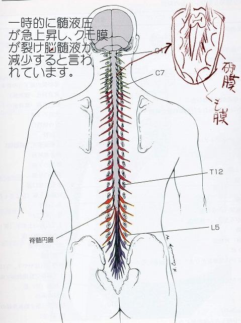 脳脊髄液減少症